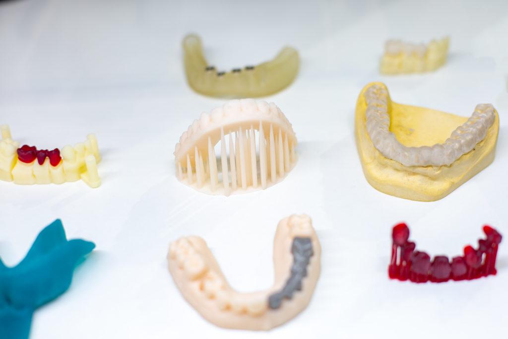 Druk 3D w stomatologii przykłady zastosowań